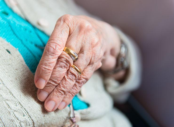 Alzheimer's Stages - Deformities